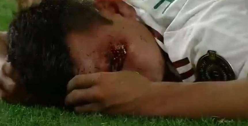 إصابة مرعبة لـ هرفينج لوزانو لاعب المكسيك في الكأس الذهبية «فيديو»